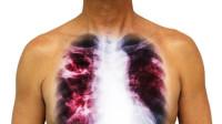 从发现到去世仅5天,21岁女孩被肺癌夺命,身体6种异常,早就医