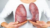 为什么女性患肺癌的比例更大,不抽烟也患肺癌?原来和它有关
