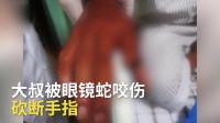 广东一大叔被毒蛇咬伤,砍断自己手指,医生:打血清就行,没必要!