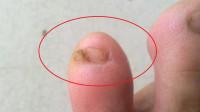 """为什么很多人的""""小脚趾"""",都有两瓣指甲?原来背后另有隐情!"""