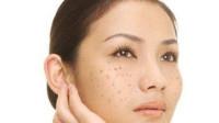 脸色暗黄有雀斑,一勺蜂蜜加它多抹抹,皮肤细腻光滑,斑点都消失