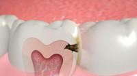 """蛀牙真是被""""虫子""""吃空的吗?3D动画演示牙坏掉的过程,网友:看着都疼"""