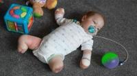 男婴四肢发黑左脚自行掉落!医生截去剩余三肢,他到底得了啥病?