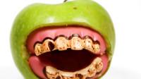 牙结石患病率高到吓人!生活中做好这3个方面,有效预防牙结石