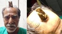 """印度男子头顶受伤后长出""""魔王之角"""" 5年长出10厘米形如树根"""