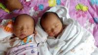 产妇产下双胞胎女儿,一个喂母乳,一个喂奶粉,孩子的体质出现差别