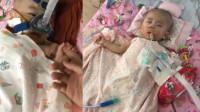 女婴患罕见病全身不能动 救命药一针70万