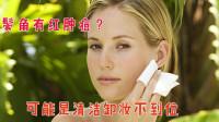 鬓角有红肿痘?可能是清洁卸妆不到位,一个小技巧让你温和清洁