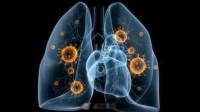 三种冠状病毒中最狡猾:新冠病毒入侵能力或是SARS病毒的10—20倍