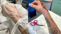 男子割破手感染罕见食肉菌 眼睁睁看着手被吃掉