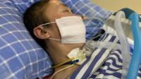 武汉护士疫情期间突发脑出血昏迷82天 申请工伤认定被拒