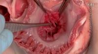 Cardiac Anatomy HD part2 心脏解剖2