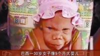 巴西一30岁女子像9个月大婴儿