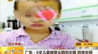 广东:6岁儿童被草尖戳伤左眼 险些失明
