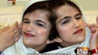 伊朗连体姐妹 分离手术背后的故事(二)