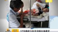 17岁癌症少年含泪捐全身器官