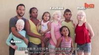 1101 巴西黑人家庭孕育三名白化病小孩