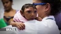 1129 寨卡病毒与小头畸形 救助受寨卡病毒危害的家庭