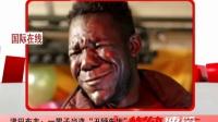 津巴布韦一男子当选丑陋先生