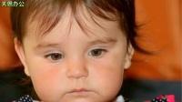 新生儿黄疸值多少算正常?宝宝有黄疸家人需要怎么做?