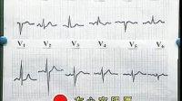 《中西医执业医师实践技能应试指导》06年应试指导(心电图检查、放射线检查)