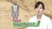 [无字幕] 130621 NHKG 総合診療医 ドクターG「疲れがとれない」