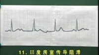 心电图检查