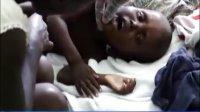 联合国高度关注海地霍乱疫情持续蔓延