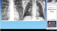 X线胸部平片读片技巧