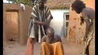 【发现最热视频】笑到飙泪!非洲治疗偏头痛的土方法