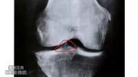 崔希锋---3分钟快速治疗腿疼骨刺的最佳方法