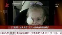 美國:臉上有疤  三歲女童被肯德基驅趕[共度晨光]