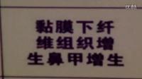 潍坊民间中医讲常见鼻炎的症状区别