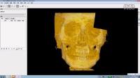 康沃森-医疗3D打印整体解决方案