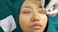 纳米无痕双眼皮操作教材,埋线双眼皮手术,韩式3点定位双眼皮 韩式双眼皮培训