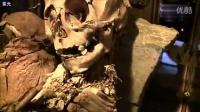 秘鲁现外星婴儿头骨