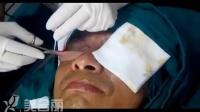 【真人案例】眼袋切除_去眼袋手术视频_美合丽