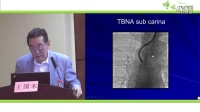 Fluoroscopic guidance for TBNA of central and peripheral lung lesions 王国本【呼吸大讲堂】