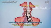【3D医学动画】【双语字幕】鼻窦炎、鼻窦手术解释(球囊鼻窦整形术和内窥镜鼻窦手术)