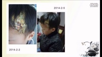 051_头部烫伤案例(小孩)