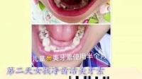 下列信号提醒你该用美牙素:  牙龈出血、口臭 烟垢、牙垢、、牙结石  牙菌斑、牙本质过敏、牙周炎