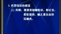 中国医科大学 病理学 04