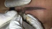 【韩美人】-悬针点刺技术①