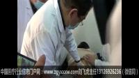 郭振存扳机点刃针浅筋膜松解疗法治疗操作视频.第2集
