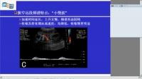 第1讲 四肢动脉超声检查-温朝阳教授