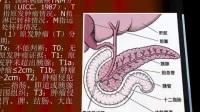 癌症之王胰腺癌