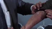 390.      2017年11月17日克什克腾旗_3(半身不遂,牛皮癣,压迫神经,脂肪肝,头疼病)