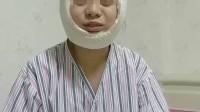 下颌骨瘦脸术后第三天恢复情况