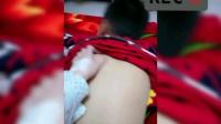 小儿推拿免费培训视频全集 孩子感冒咳嗽有痰怎么推拿 小孩咳嗽痰多的推拿手法 宝宝感冒咳嗽有痰怎么办