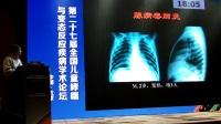1儿童常见肺部感染的影像评价 袁新宇